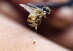 укус пчелы как снять отек