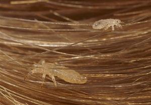 Как передаются вши и как избавиться от паразитов у взрослых и детей